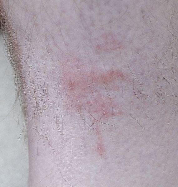 570px-Bedbug_bites_on_human_leg_2